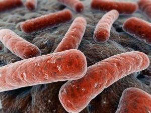 Причины возникновения дисбактериоза влагалища