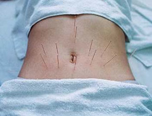 Iglorefleksoterapija-pri-kolite