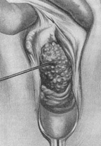 Кондиломы в области половых органов